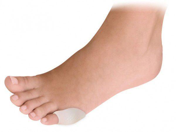 Предпазител за кокалче на крака за малкия пръст